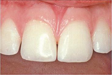 følsomme tandhalse behandling